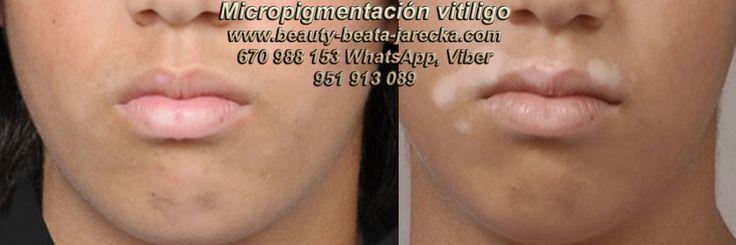 >_:;VITILIGO TRATAMIENTO cura para vitiligo Micropigmentación Vitiligo Dermopigmentación Vitiligo Nuevo Tratamiento Vitiligo en Marbella y Murcia