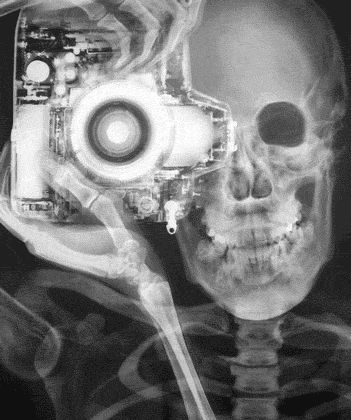 find this pin and more on pin hole photography - Best Camera For Medical Photography