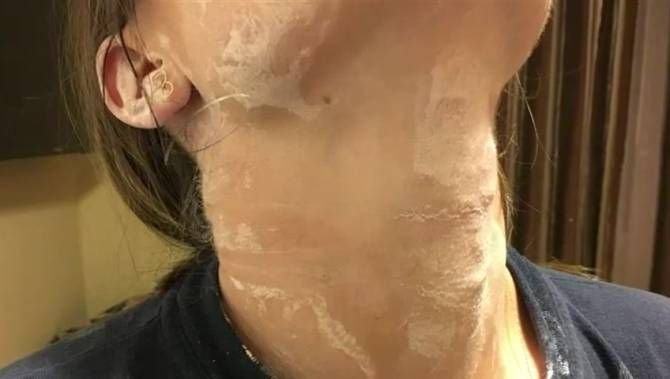 07/05/2017 - Family voices concerns about bedbugs at North Vancouver motel
