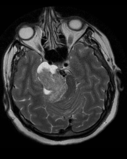 Trigeminal schwannoma   Radiology Case   Radiopaedia.org