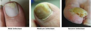 Mild, Medium and Severe Fungal Nail Infection - Onychomycosis.   Fast and Effective treatments are available.