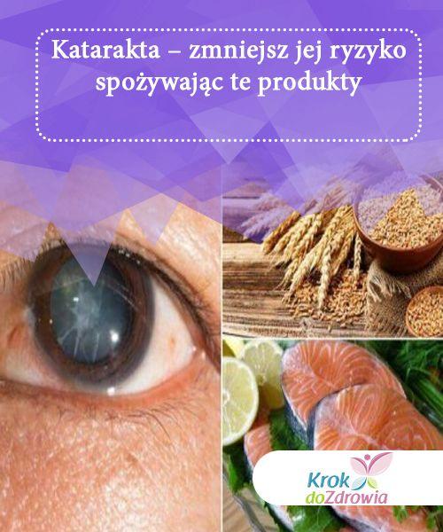 Katarakta - zmniejsz jej ryzyko spożywając te produkty   Poprzez zamazany wzrok, katarakta sprawia, że siatkówka ma problem ze skupianem się. Z tego powodu tworzy niewyraźne obrazy. Jak jej zapobiegać?