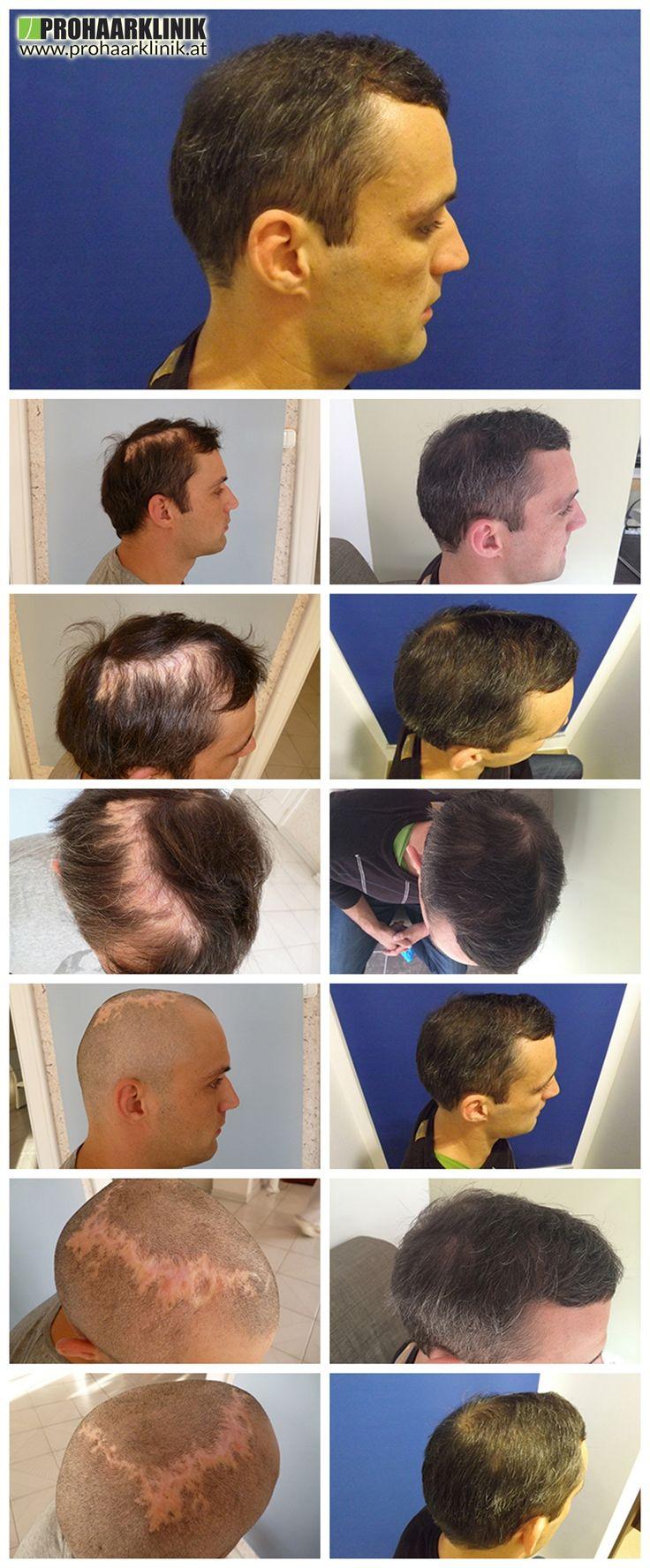 http://www.prohaarklinik.at/haartransplantation-vorher-nachher-bilder/   Haartransplantation in Narbengewebe - PROHAARKLINIK  Peter verlor einen Teil seiner Haare durch Feuer in seiner Kindheit. Die Haartransplantation Behandlung wurde durch PROHAARKLINIK in Mosonmagyaróvár durchgeführt wurden Hungary.5000 + Haare während der 12 Stunden langen Haar Wiederherstellung implantiert.