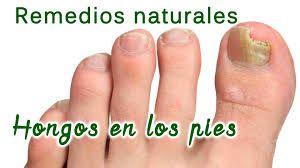 Resultado de imagen para hongos uñas pies doterra