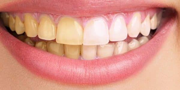 ما سبب اصفرار الأسنان و طرق تبييض الأسنان Blog Blog Posts