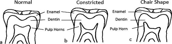 The rachitic tooth: The use of radiographs as a screening technique. http://www.sciencedirect.com/science/article/pii/S1879981717300499?via%3Dihub