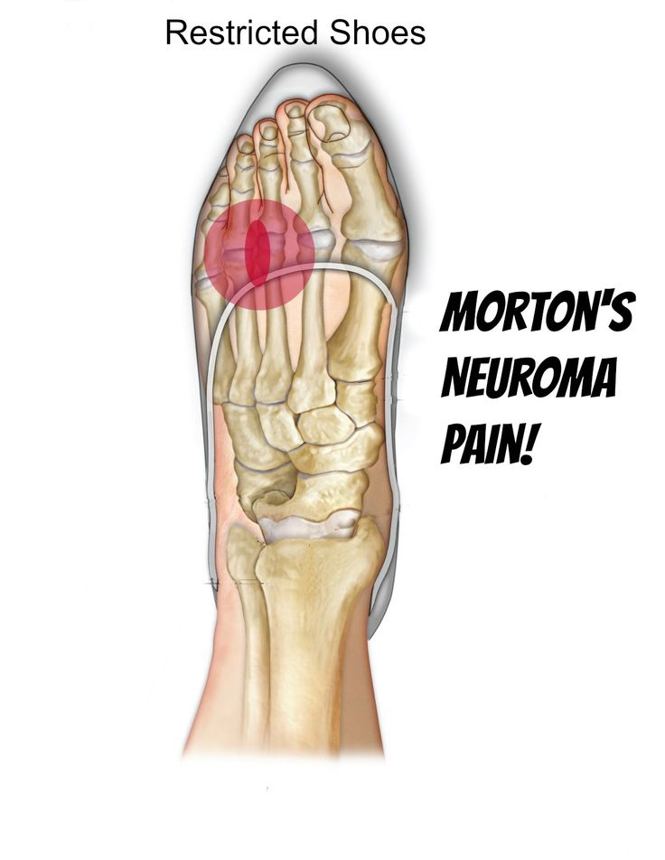 Morton's Neuroma - Self Help Tips, Treatment and Prevention