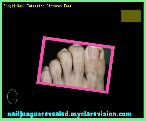 Fungal nail infection pictures feet - Nail Fungus Remedy. You have nothing to lose! Visit Site Now