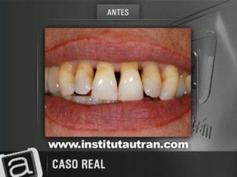 Estética dental: encías retraídas (problema y solución)