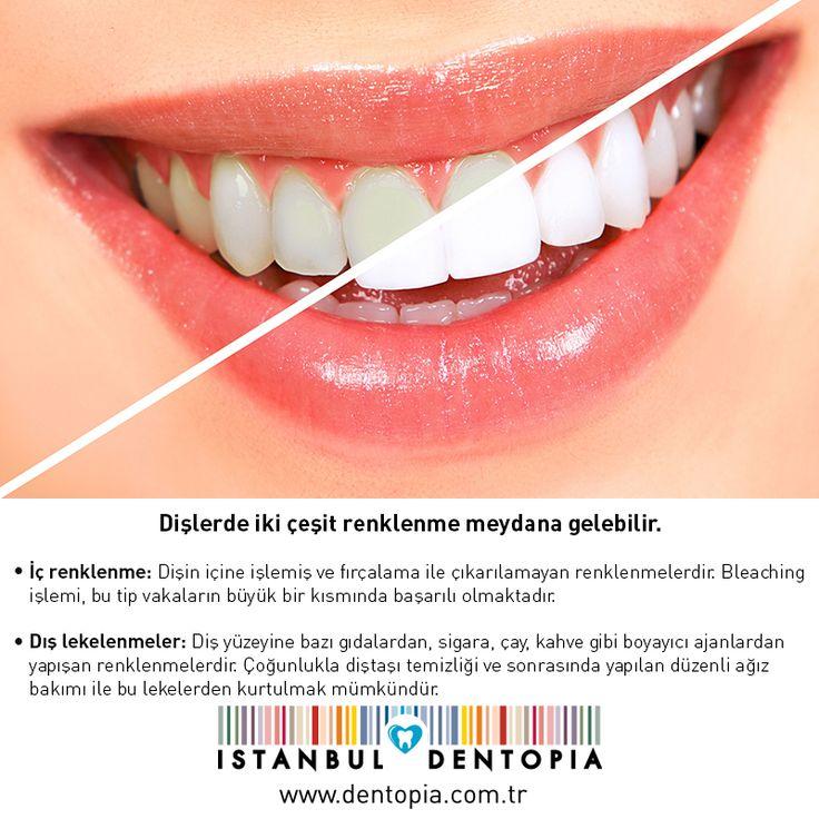 Günümüzde dişlerde fark edilir bir beyazlatma sağlatmak mümkün olmaktadır. Farklı renklendirmeler farklı tedaviler gerektirdiğinden, ne tip bir beyazlatma uygulama yapılması gerektiğine diş hekimi karar vermelidir. www.dentopia.com.tr