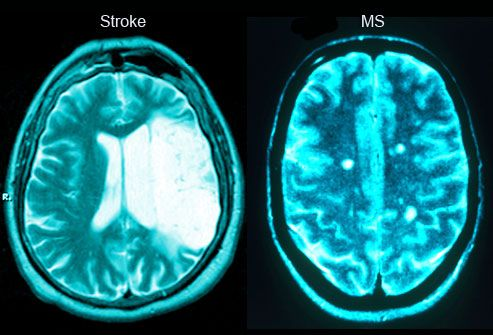 Stroke vs. MS Confusion, slurred speech, and muscle weakness can be symptoms of MS, but they can also be signs of a stroke. Anyone who suddenly has trouble speaking or moving their limbs should be taken to the ER immediately. Treating a stroke within the first few hours provides the best odds of a successful recovery.