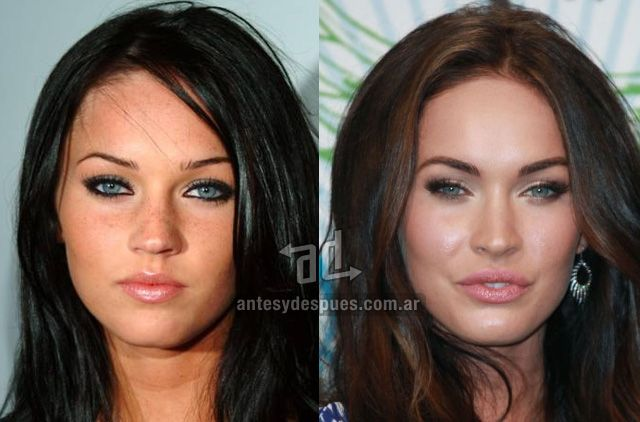 Megan Fox Before and After Plastic Surgery.... honestly, I think she was prettier before
