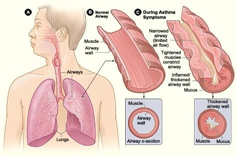 How to Start Running with Asthma: A Comprehensive Guidechelle lee
