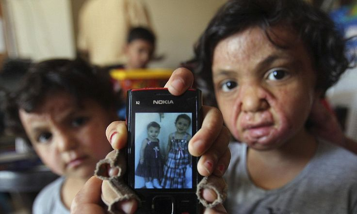 Innocent victims: Scarred faces of Syrian children highlight horrors of war as refugees pour across border into Jordan