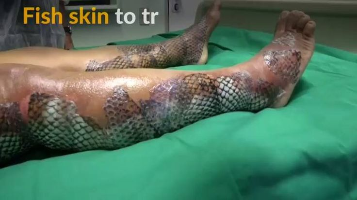 SAVING YOUR SKIN: A treatment for severe burns using the skin of the tilapia fish has been applied on humans for the first time and has shown positive results.   (Video: Reuters)