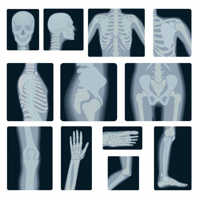 f3bcbab15840a58c7d9df8f3f554336a » X-ray Drawing