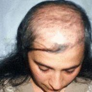 LOS MEJORES productos que facilitan el crecimiento del pelo