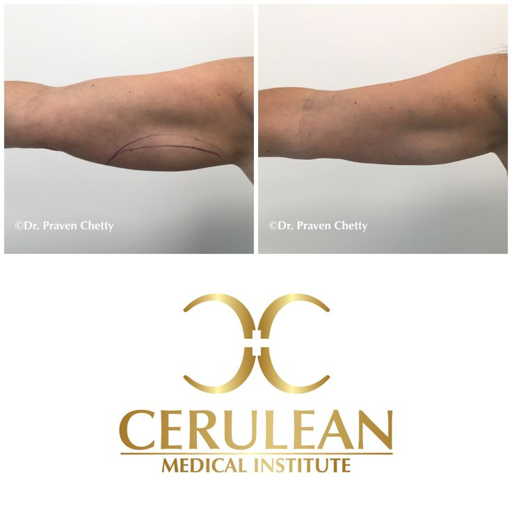 Transformation Tuesday: Bye bye bat wings with advanced non-surgical skin tightening at Cerulean Medical Institute. #Wellness #Beautiful #Youthful #Transformation #AntiAging #NonSurgical #SkinTightening #NoDowntime #BatWings #Cosmetic #Dermatology #Sculpting #Contouring #DrPravenChetty #CeruleanMedicalInstitute #Kelowna #Okanagan #Ylw