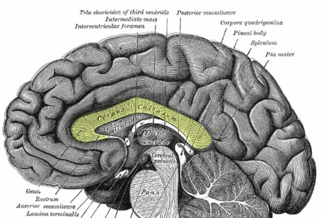 The corpus callosum is a thick band of nerve fibers that divides the cerebrum into left and right hemispheres.