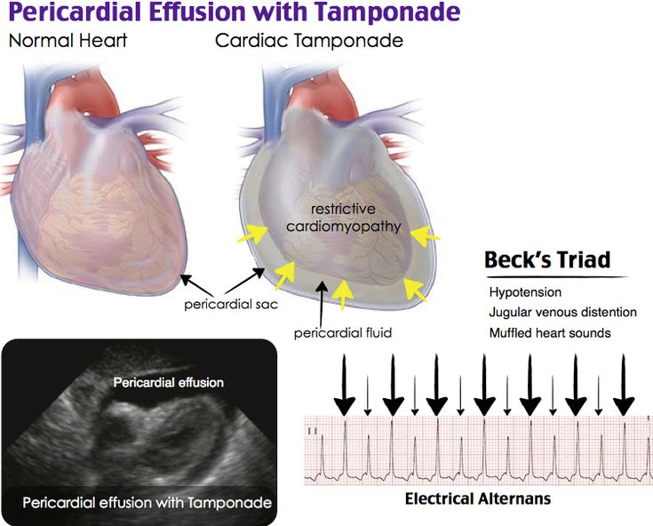 Pericardiocentesis should be performed emergently on patients with signs and symptoms of cardiac tamponade regardless of coagulopathy. Pericardial tamponade occurs when fluid builds in the pericardial sac causing collapse of the right ventricle. Relative contraindications include coagulopathy, previous thoracoabdominal surgery, pacemakers, prosthetic heart valves and inability to visualize the effusion with ultrasound.