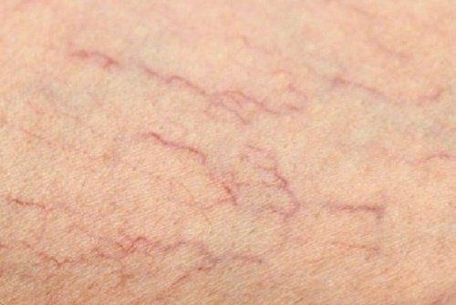 Artykuł zawiera opis sposobów pozwalających Ci zredukować żylaki i pajączki naczyniowe na swoich nogach w naturalny i skuteczny sposób.
