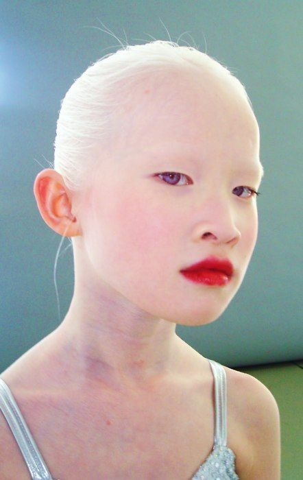 Beautiful- she is Albino with violet eyes- a very rare genetic combination