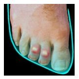 and you wonder how you get hammer toes! tight shoes that dont allow your feet to breathe can lead to toe deformities http://www.drfoot.co.uk/hammer%20toes.htm#