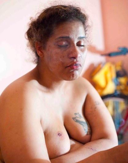 Nude video drug xxx photos 28