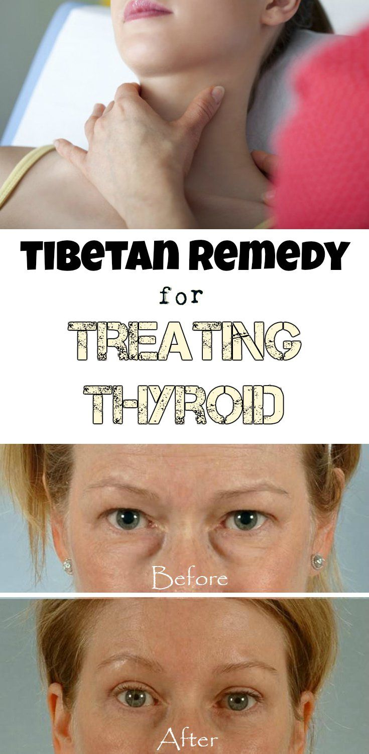 TIBETAN REMEDY FOR TREATING THYROID