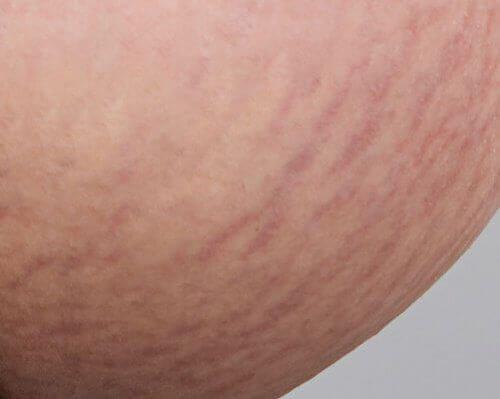 Få saker är så irriterande som hudbristningar. Här är några naturliga behandlingar som kan bidra till att reducera dem.