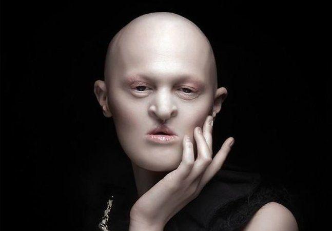 Ao invés de recolher-se em qualquer impressão traumática a respeito de si, a jovem americana Melanie Gaydos decidiu enfrentar de nariz em pé e peito aberto nada menos que a indústria da moda. Nascida com uma doença rara chamada displasia ectodérmica, condição que faz com que seu poros, dentes, unhas, e alguns ossos se desenvolvam de forma anormal, Melania aos 28 anos vem se tornando uma modelo de destaque. Aquilo que poderia ser visto, por ela e por outras pessoas, como um estigma…