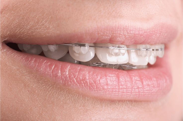 New Study Uses T-Scan NOVUS Technology to Reveal Orthodontia's Impact on the Bite