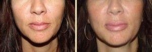 Lips Implants VS Lip Injections