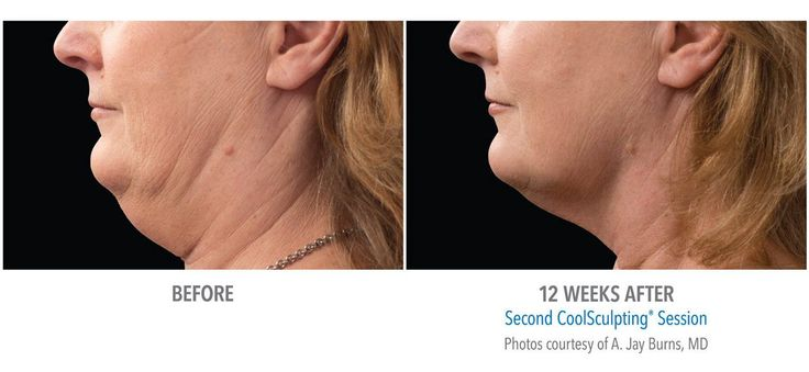 Coolsculpting® | Non-Surgical Fat Removal - The Definition Clinic
