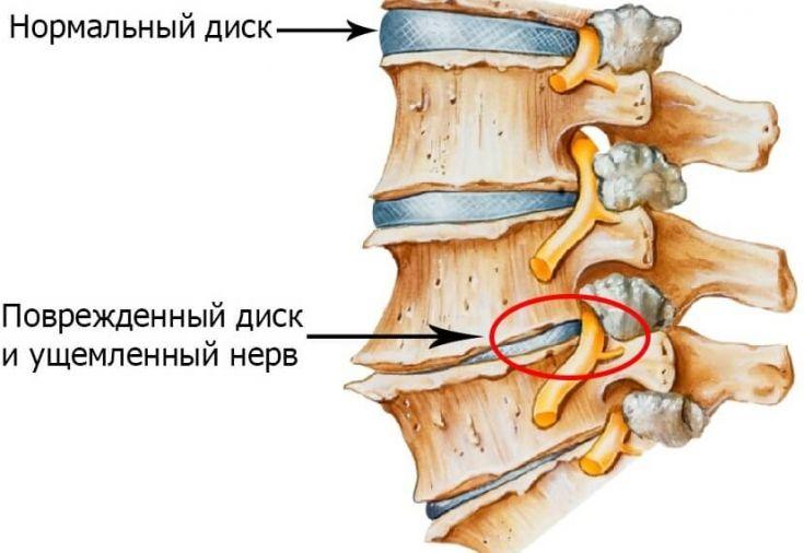 Остеохондроз шейного отдела характеризуется ускоренным старением межпозвоночных дисков, а впоследствии – тел шейных позвонков. Поскольку именно шейные позвонки являются самыми подвижными из всех отделов позвоночника, они и являются самыми у...