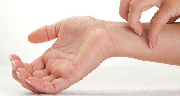 Contact Dermatitis — What You Need to Know About This Itchy Skin Condition | | Health Digezt