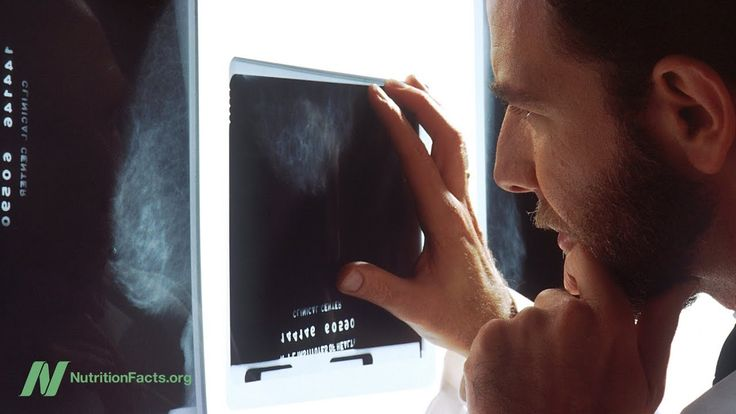 Consequences of False Positive Mammogram Results #healthcare #womenshealth