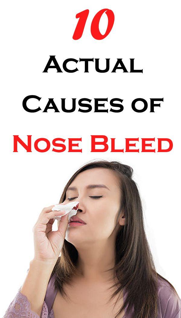 nose bleed keto diet