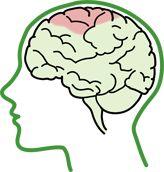 Spastic Cerebral Palsy | Cerebral Palsy Alliance