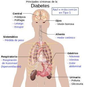 Diabetes mellitus - Wikipedia, la enciclopedia libre