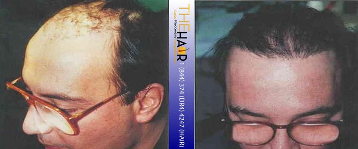 Click to enlarge image 9 hair transplant before and after.jpg