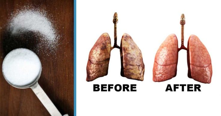 In case you wish to stop smoking, you should know that nicotine is flushed out of your system after 2 or 3 days. However, there is a way to eliminate nicotine from the body naturally and quickly. Tartar cream represents a byproduct of the process of wine
