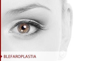 Blefaroplastia Clínica Thomas
