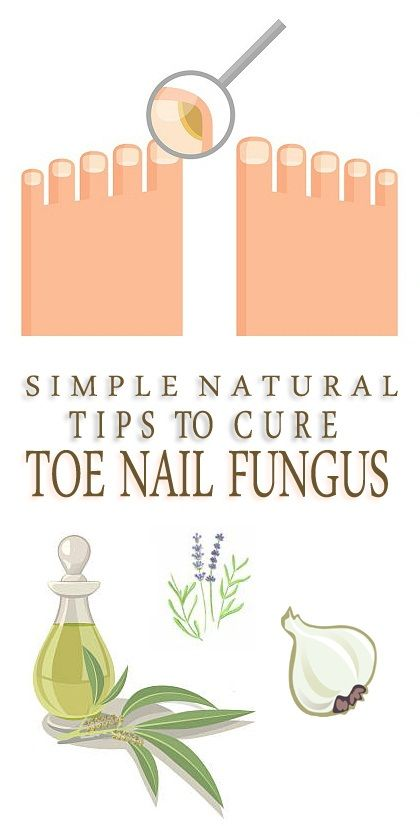 How to Get Rid of Toenail Fungus? This guide will help you out in the best possible manner for getting freedom from toenail fungus.