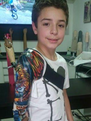 Cazuza: Garoto atacado por tigre ganha prótese tatuada: 'D...