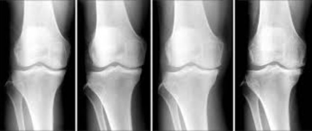 Nearly one-third of osteoarthritis-related costs incurred the year prior to knee replacement surgery are for non-recommended treatments - http://www.orthospinenews.com/nearly-one-third-of-osteoarthritis-related-costs-incurred-the-year-prior-to-knee-replacement-surgery-are-for-non-recommended-treatments/