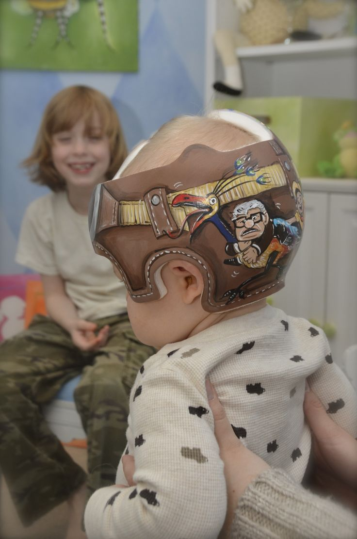 Best Plagiocephaly Images On Pinterest Helmets Baby Helmet - Baby helmet decalsa family blog that takes you through the experience of a baby with