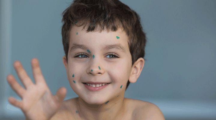 Affection dermatologique très répandue chez les tout petits, le molluscum contagiosum sont des lésions infectieuses qui ressemblent à de petites excroissances dues à un virus à ADN double hélice du genre Pox Virus . C'est une maladie de la peau courante et contagieuse qui peut s'étendre rapidement et touche essentiellement les enfants entre 2 et …