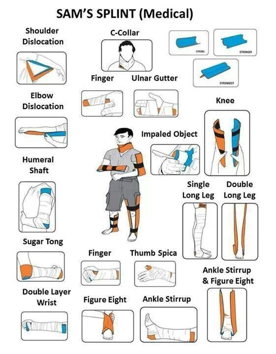 How to Splint Bone Fractures with a SAM Splint. A useful guide with different ways you can use a SAM Splint to treat bone fractures and injuries in different parts of the body. Don't know what is a SAM Splint yet? Read our article here: http://insidefirstaid.com/personal/first-aid-kit/splinting-bone-fractures-with-a-sam-splint #sam #splint #bone #fractures #emt #paramedic #emergencies