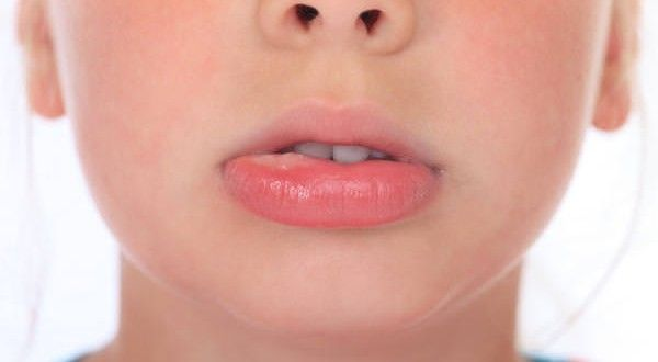 How To Get Rid Of A Mucocele At Home